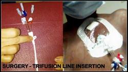 Image 19 - Trifusion insertion surgery