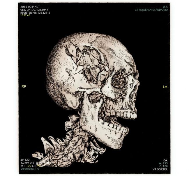 de volksjury - schedel