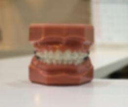 denture on white board_edited_edited.jpg