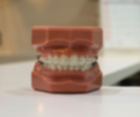 denture on white board_edited_edited.jpg