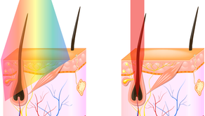 What's the difference between Laser and IPL?