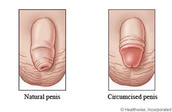 Circumcision 2.jpg