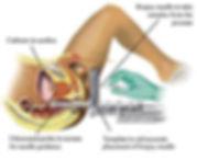 TP Biopsy.jpg