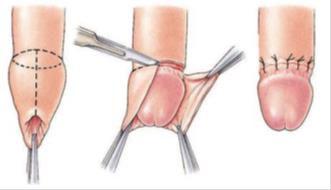 Circumcision 1.jpg