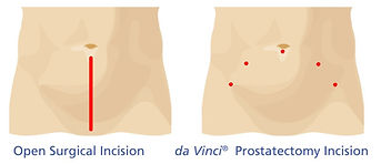 Prostatectomy incisions.jpg