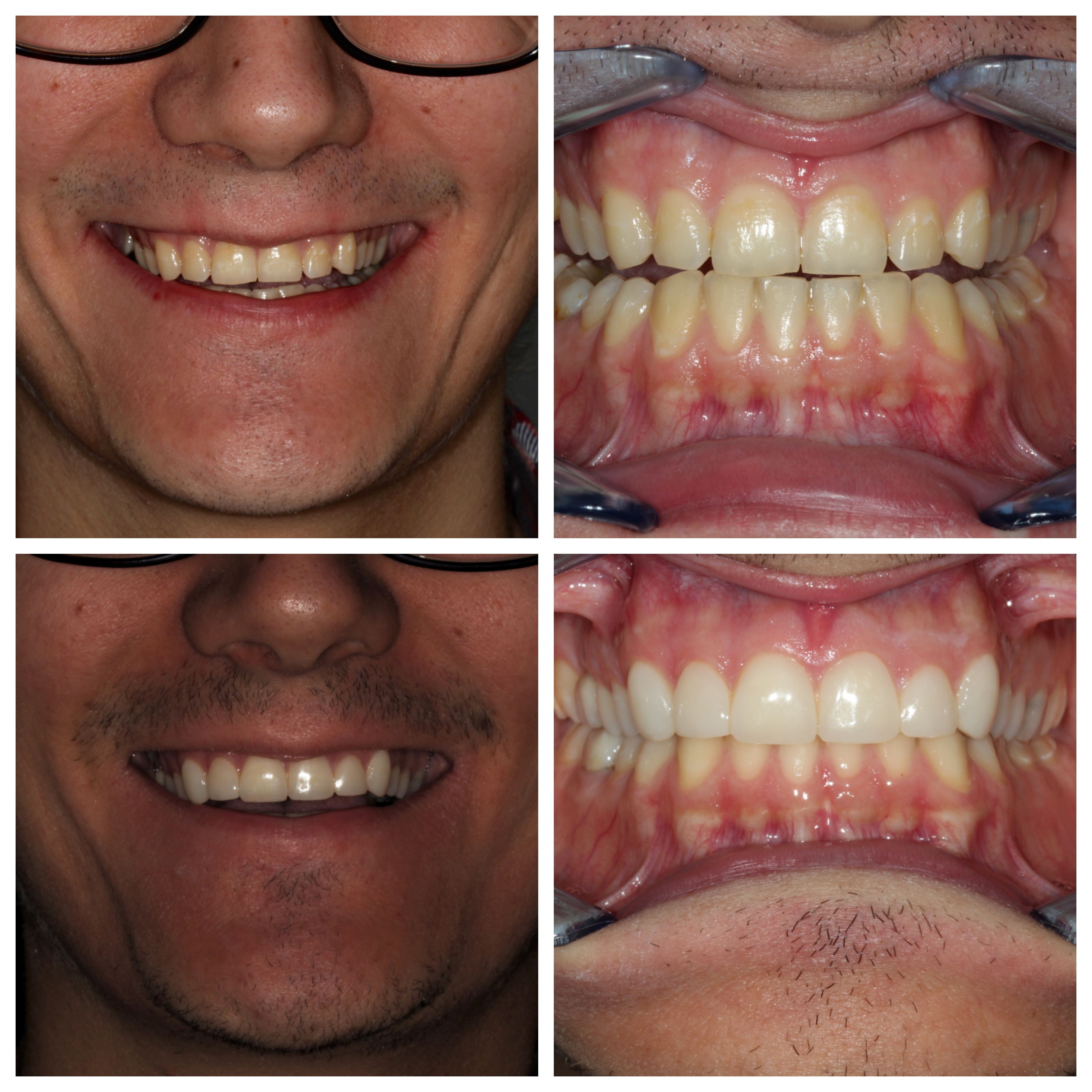Composiet veneers