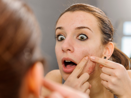 Whiteheads and Blackheads: Most common types of Acne