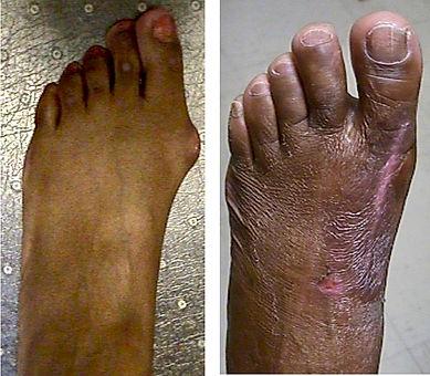 left foot bunion surgery BF.jpg