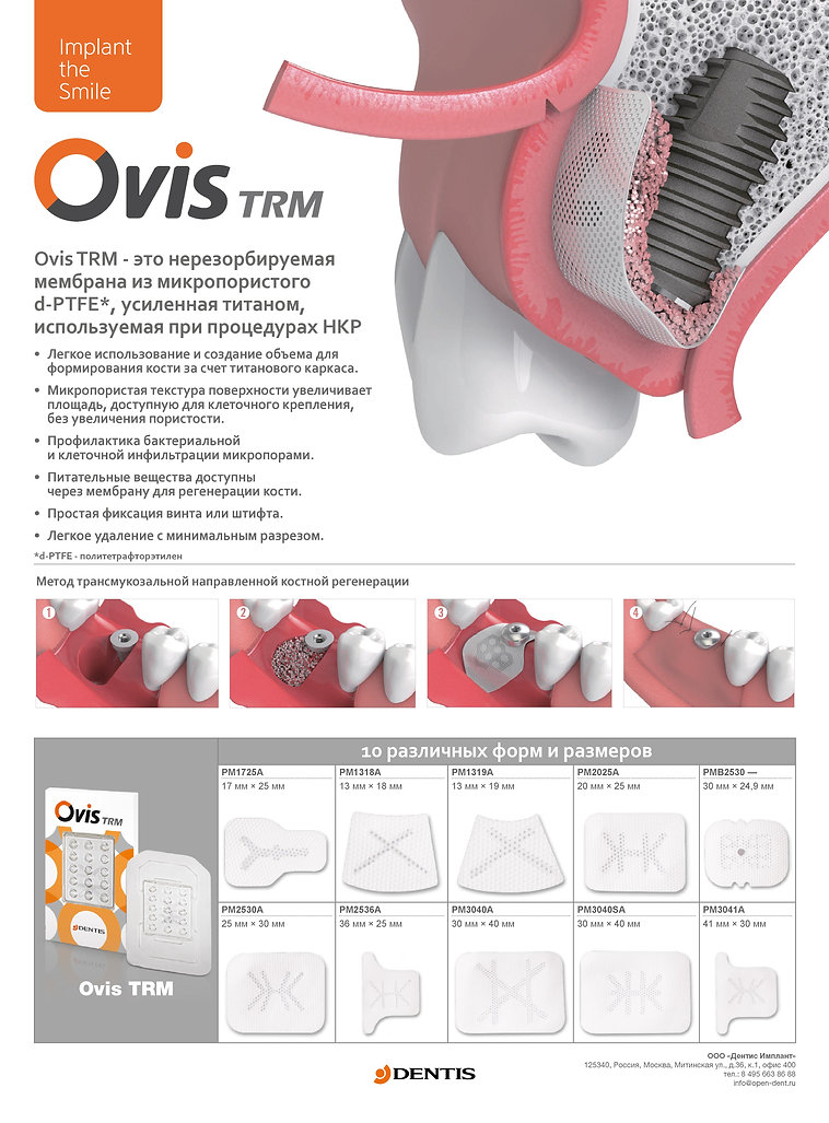 Нерезорбируемая Мембрана Ovis TRM.jpg