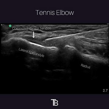 Ultrasound-guided TENEX procedure, ultrasound, injection,elbow, tennis elbow