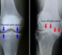 Knee arthritis, x-ray