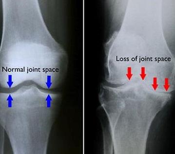 Knee arthritis, x-ray