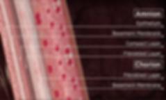 Amniotic membrane allograft diagram