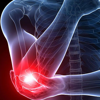 Elbow pain, Tennis elbow, tendinopathy, arthritis, PRP
