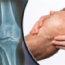 Knee arthritis, stem cell injection