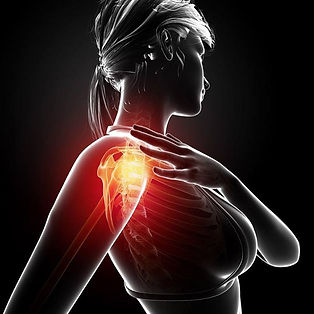 Shoulder pain, rotator cuff pain