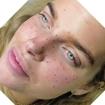 •FRECKLES• Get the sunkissed summer look