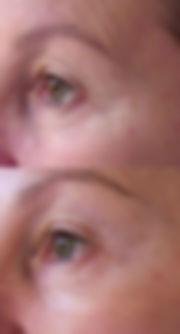 Cosmetic Acupuncture Fort Lauderdl