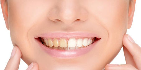 tandenbleek.jpg