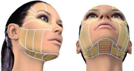 Hifu Equaliser nek en onderkin treatment