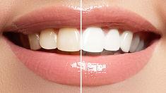 Kosmetisches-Zahnbleaching