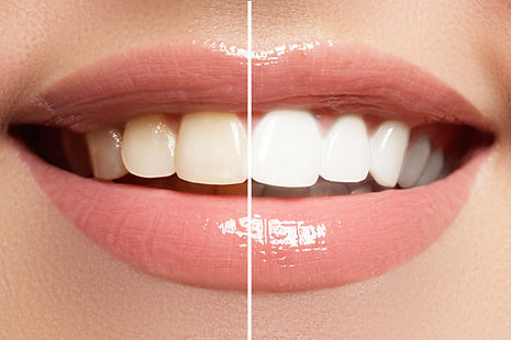 vorher-nachher-Zahnbleaching