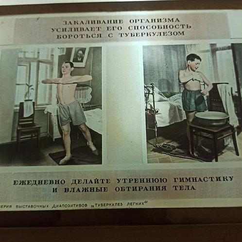 """Серия диапозитивов СССР """"Туберкулез легких"""" 50-ее."""