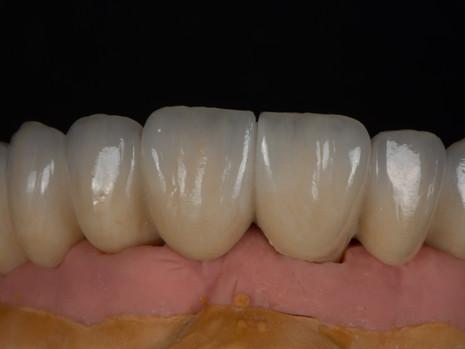 Implant (35).jpg