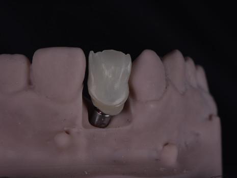 Implant (13).JPG