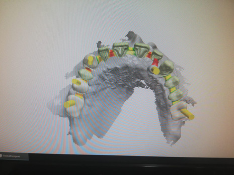3D Tarama (27).jpeg