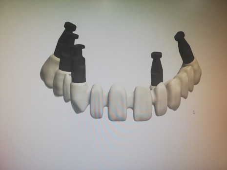 3D Tarama (5).jpeg