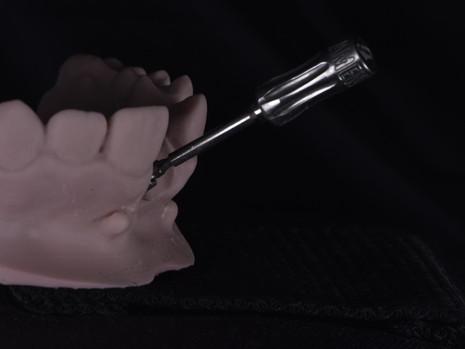 Implant (4).JPG