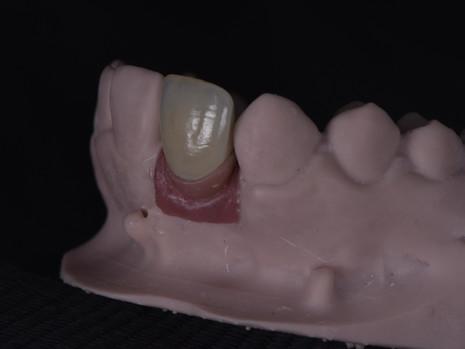 Implant (28).JPG
