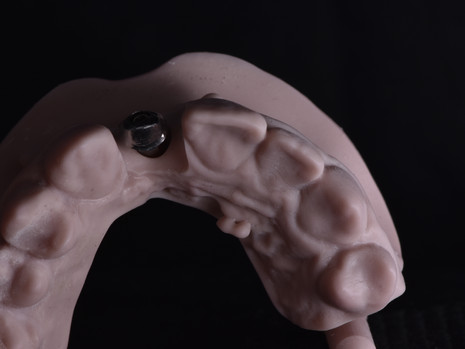 Implant (7).JPG