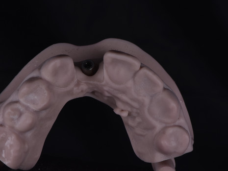 Implant (3).JPG