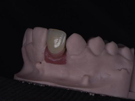 Implant (29).JPG