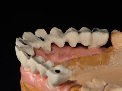 Implant (30).jpg