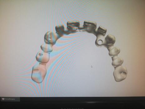 3D Tarama (26).jpeg