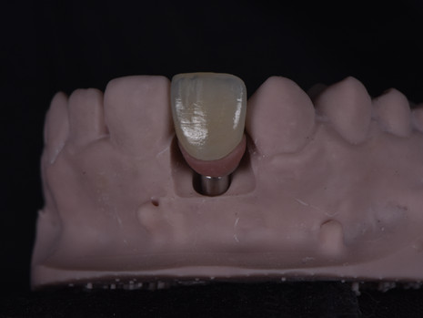 Implant (24).JPG