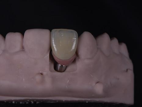 Implant (23).JPG
