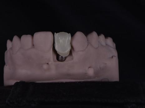 Implant (12).JPG