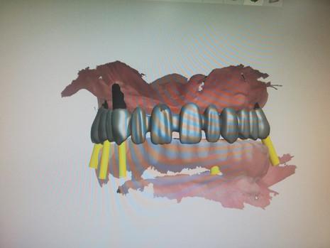 3D Tarama (21).jpeg
