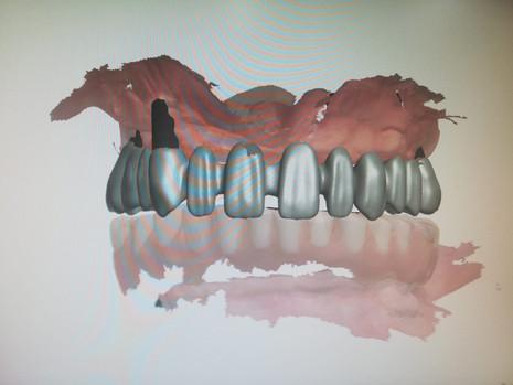 3D Tarama (12).jpeg