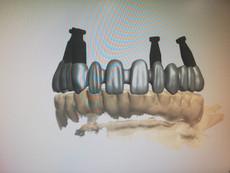 3D Tarama (1).jpeg