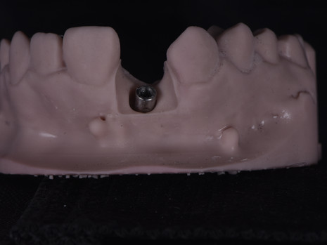 Implant (2).JPG