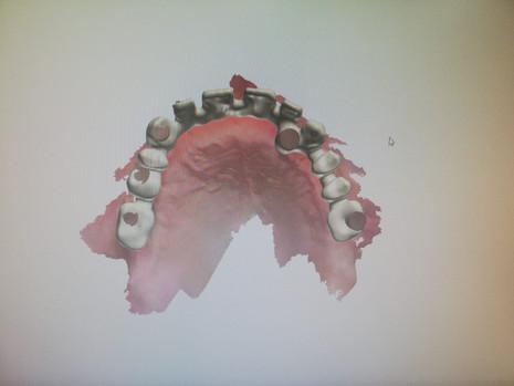 3D Tarama (11).jpeg