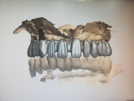 3D Tarama (7).jpeg