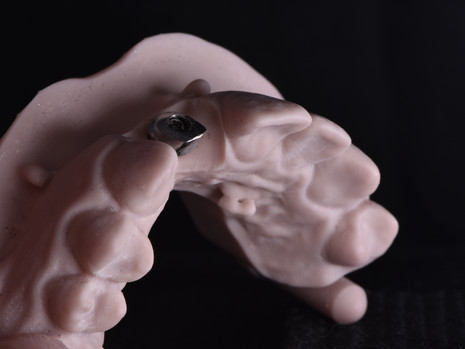 Implant (8).JPG