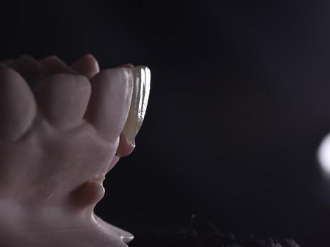Implant (26).JPG