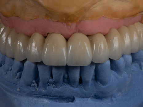 Implant (1).jpg
